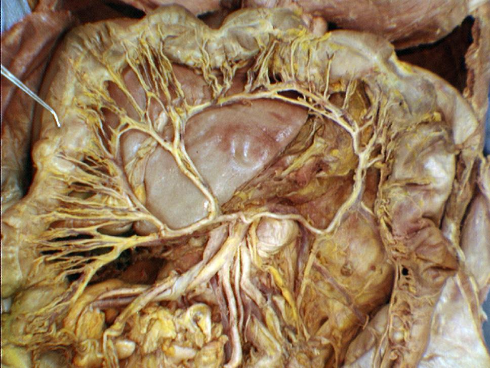 Ascending Colon Cancer