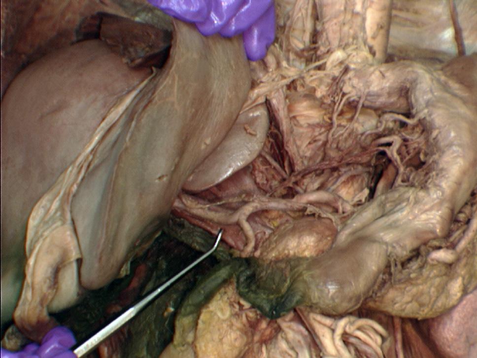 Hepatoduodenal Ligament Cadaver
