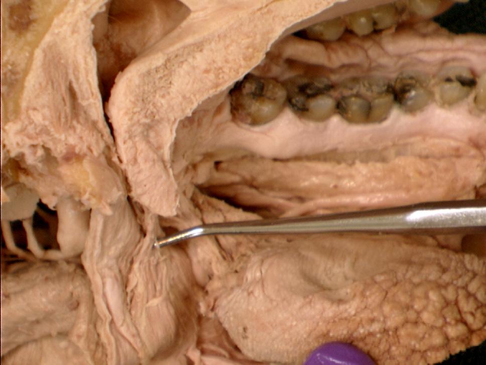 The palatopharyngeal fold  Palatoglossus Palatopharyngeus