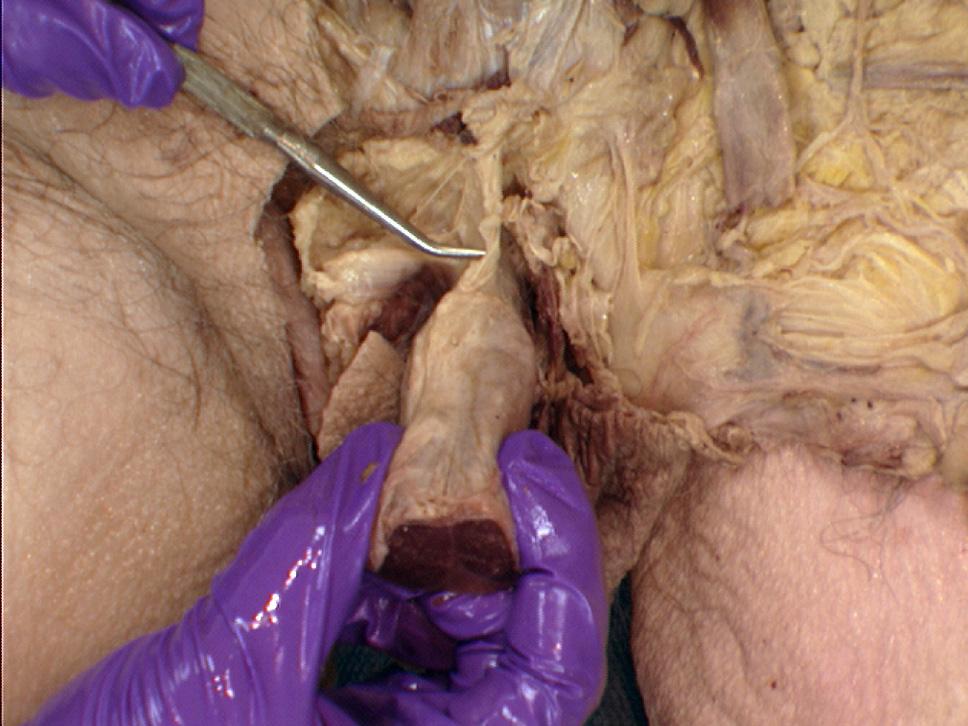 suspensory ligament penis