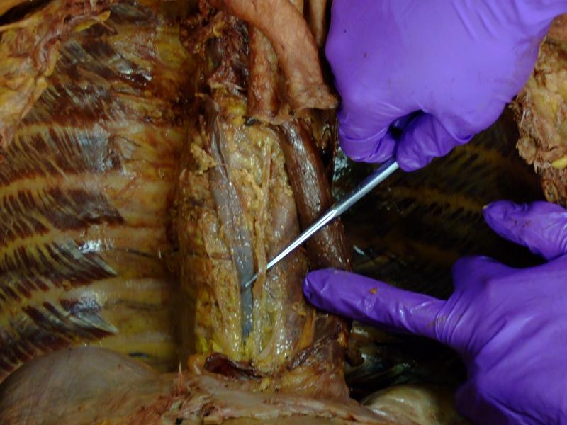 The Body Online - Stony Brook University Department of Anatomy