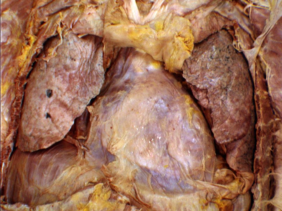 the body online - stony brook university department of anatomy, Human Body