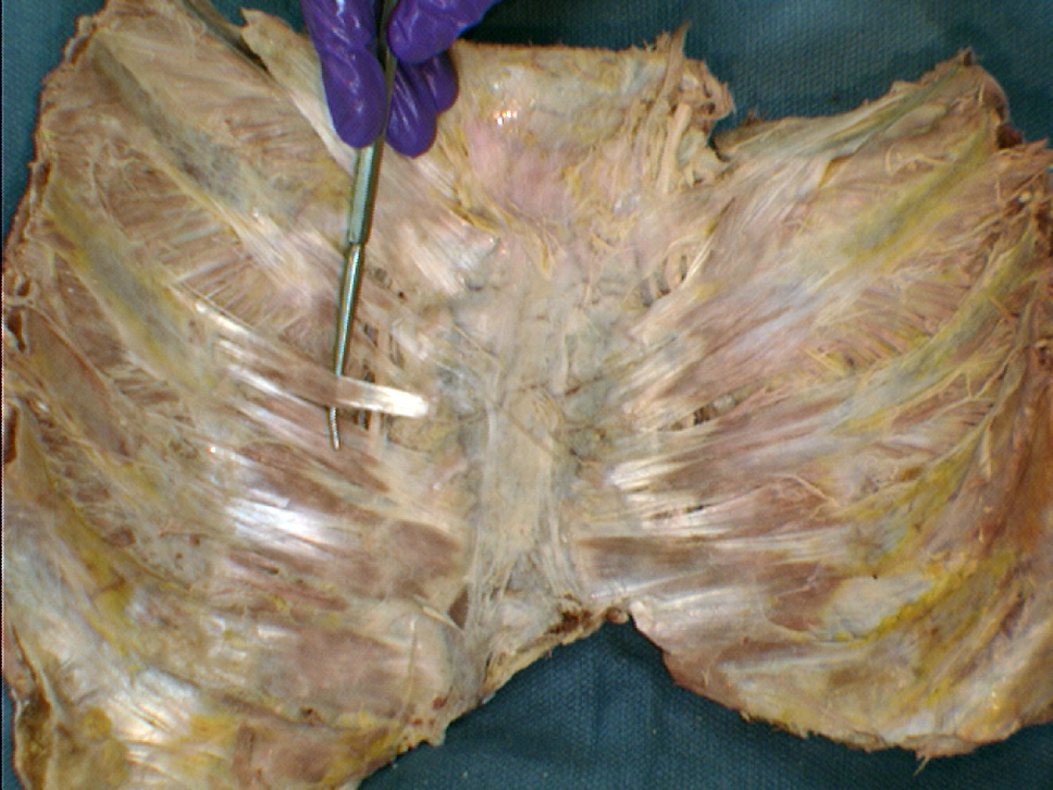 This image is of the inner surface of the breastplate which normally