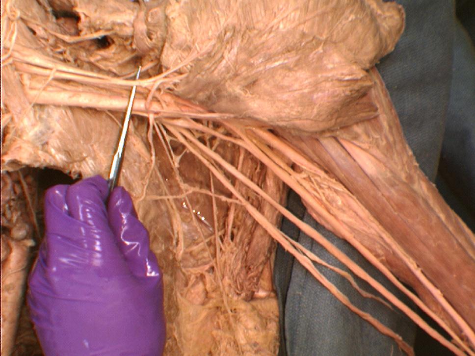 The Body Online Stony Brook University Department Of Anatomy